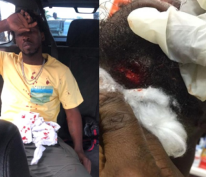 Photographs: Orezi survives car accident on Third Mainalnd connect, endures 'broken jaw'